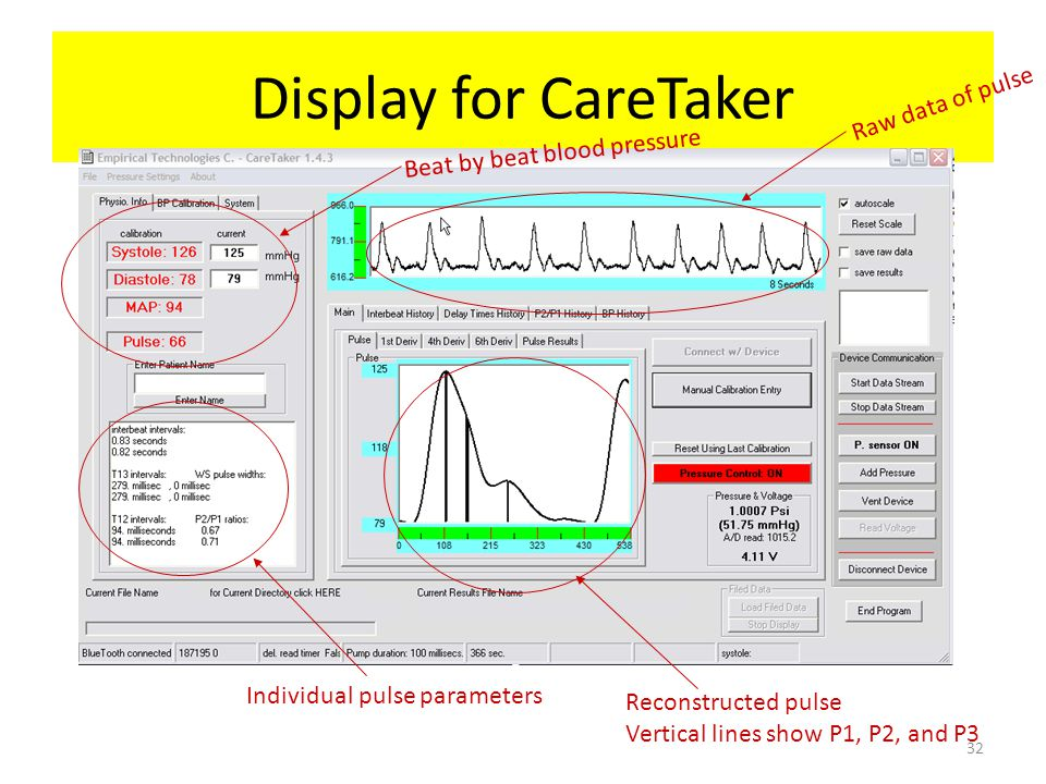 Display for CareTaker Beat by beat blood pressure Raw data of pulse Reconstructed pulse Vertical lines show P1, P2, and P3 Individual pulse parameters