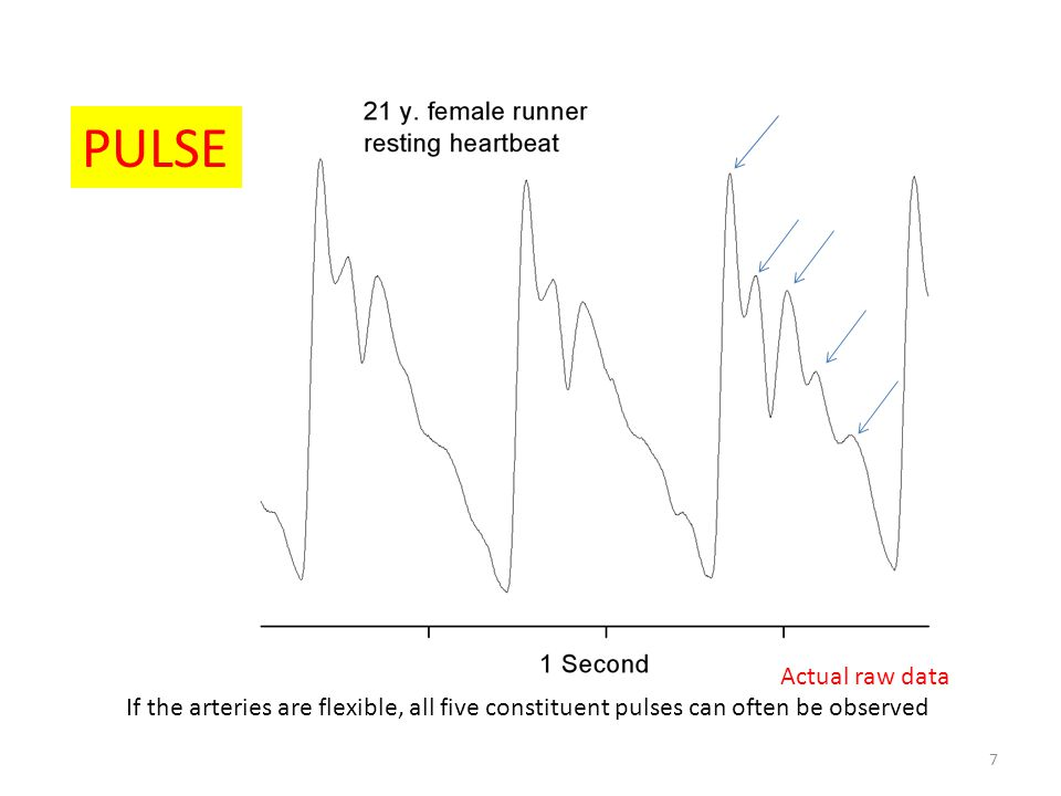 Actual raw data PULSE 7 If the arteries are flexible, all five constituent pulses can often be observed