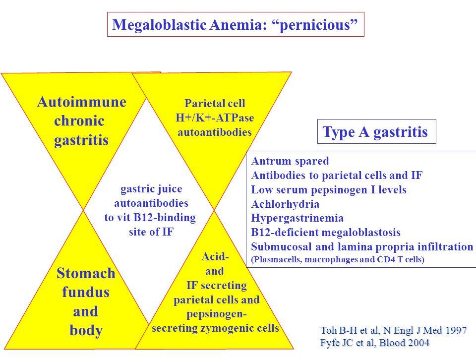 Megaloblastic Anemia: pernicious Stomach fundus and body Autoimmune chronic gastritis Parietal cell H+/K+-ATPase autoantibodies Acid- and IF secreting parietal cells and pepsinogen- secreting zymogenic cells gastric juice autoantibodies to vit B12-binding site of IF Type A gastritis Antrum spared Antibodies to parietal cells and IF Low serum pepsinogen I levels Achlorhydria Hypergastrinemia B12-deficient megaloblastosis Submucosal and lamina propria infiltration (Plasmacells, macrophages and CD4 T cells) Toh B-H et al, N Engl J Med 1997 Fyfe JC et al, Blood 2004