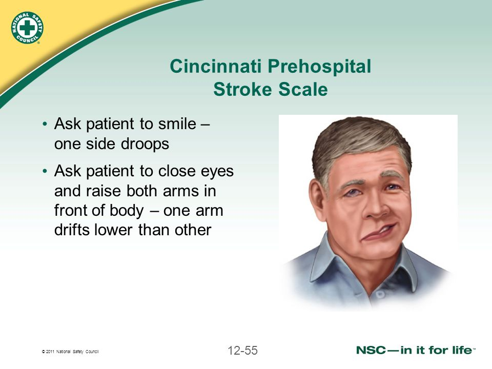 © 2011 National Safety Council 12-55 Cincinnati Prehospital Stroke Scale Ask patient to smile – one side droops Ask patient to close eyes and raise bo