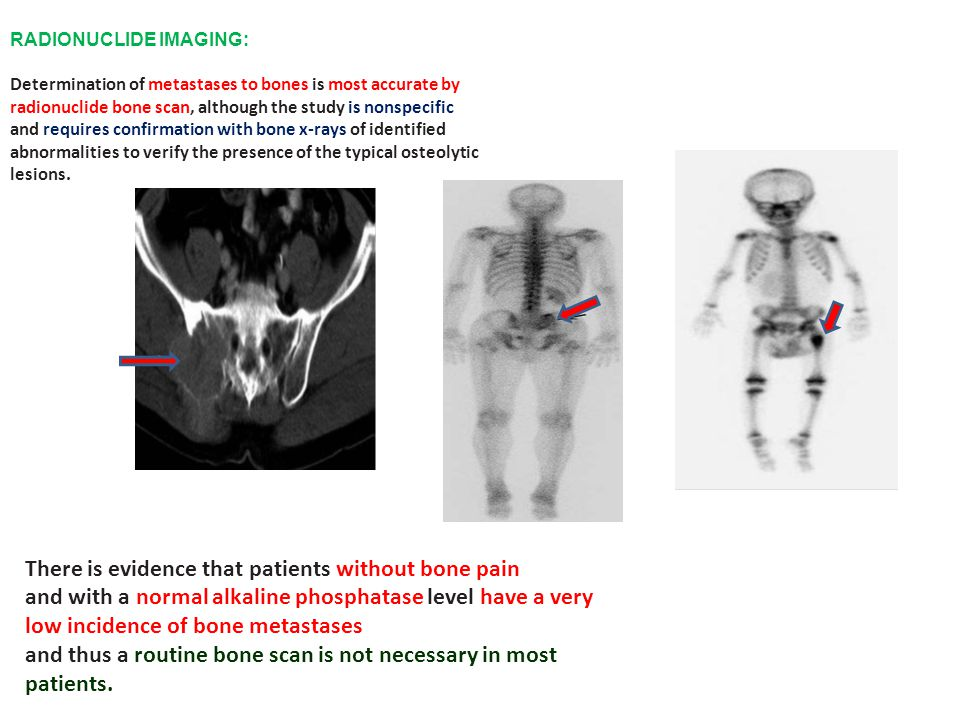 RADIONUCLIDE IMAGING: Determination of metastases to bones is most accurate by radionuclide bone scan, although the study is nonspecific and requires