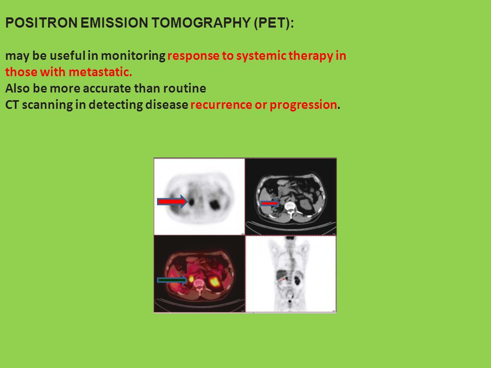 POSITRON EMISSION TOMOGRAPHY (PET): may be useful in monitoring response to systemic therapy in those with metastatic. Also be more accurate than rout