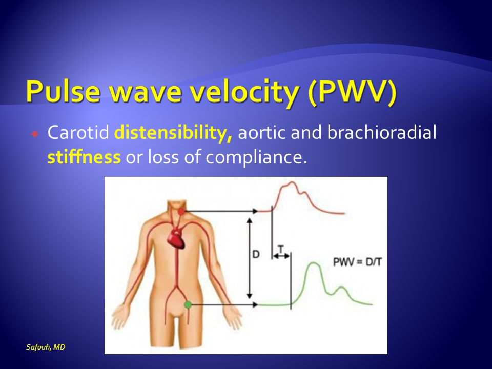  Carotid distensibility, aortic and brachioradial stiffness or loss of compliance. Safouh, MD