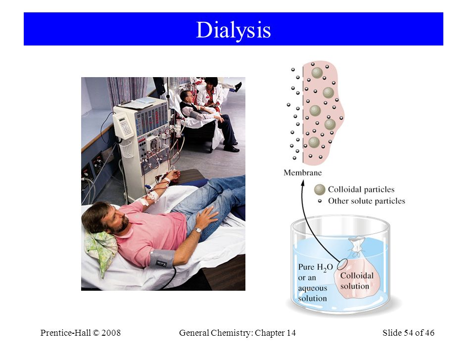 Prentice-Hall © 2008General Chemistry: Chapter 14Slide 54 of 46 Dialysis