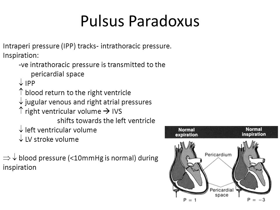 Pulsus Paradoxus Intraperi pressure (IPP) tracks- intrathoracic pressure. Inspiration: -ve intrathoracic pressure is transmitted to the pericardial sp
