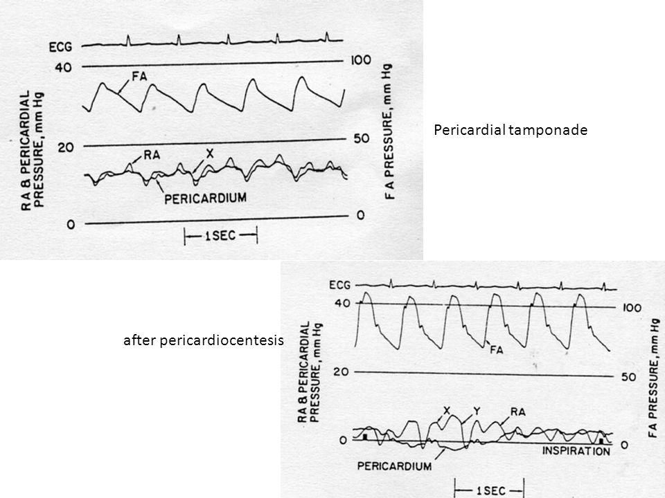 Pericardial tamponade after pericardiocentesis