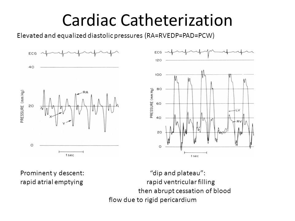 "Cardiac Catheterization Prominent y descent: ""dip and plateau"": rapid atrial emptying rapid ventricular filling then abrupt cessation of blood flow du"