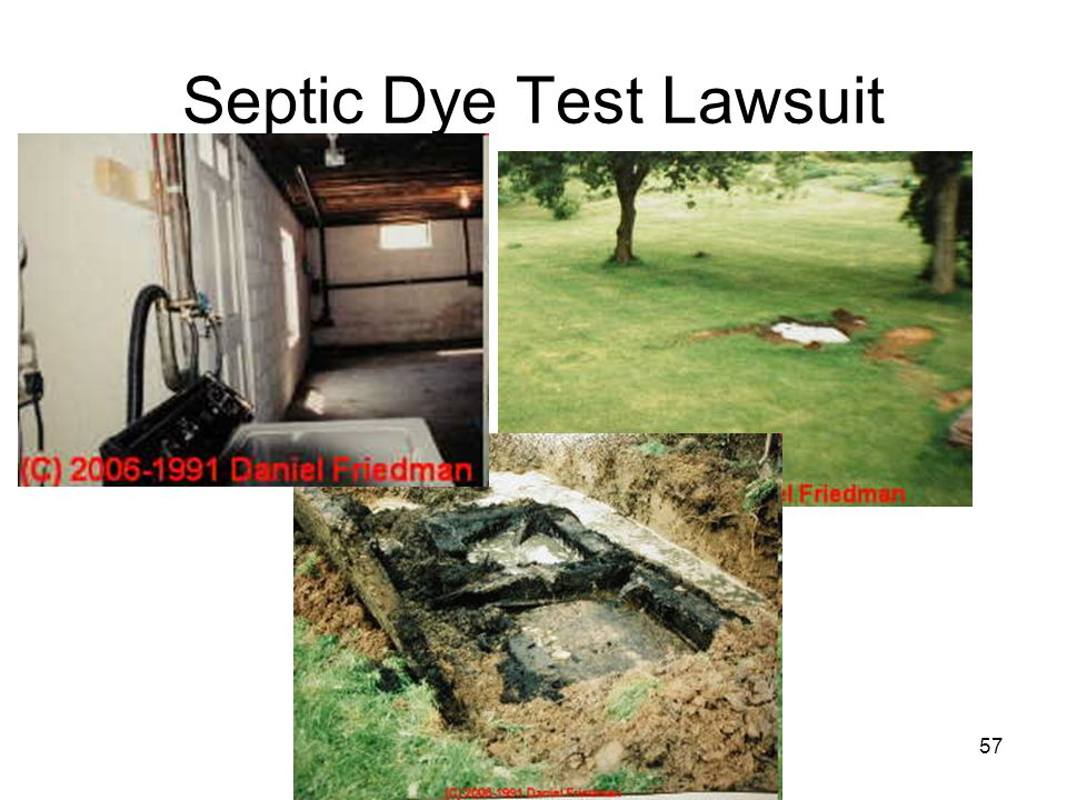 (C) Daniel Friedman57 Septic Dye Test Lawsuit