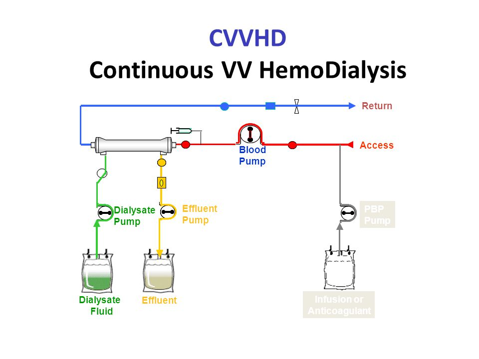 CVVHD Continuous VV HemoDialysis Hemofilter Effluent Pump Effluent Access Return Dialysate Pump Dialysate Fluid Blood Pump Infusion or Anticoagulant PBP Pump