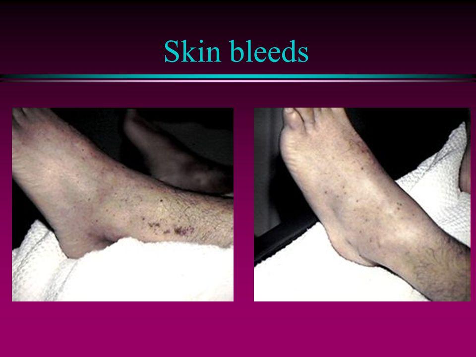 Skin bleeds