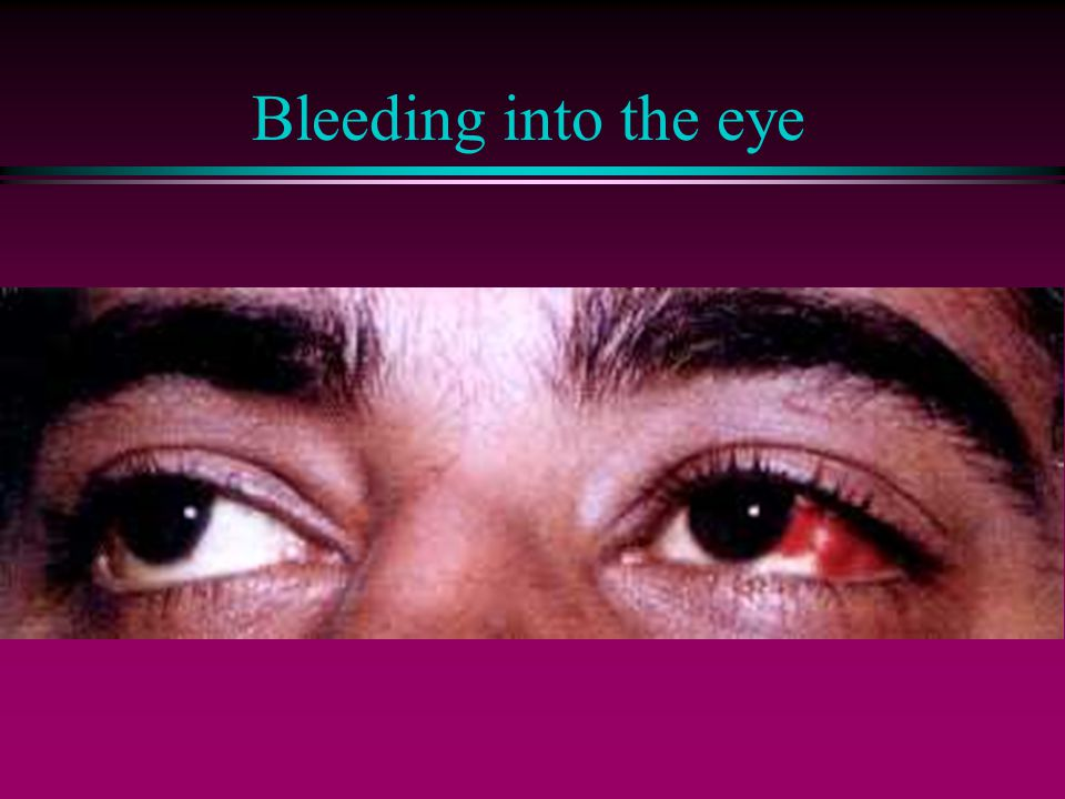 Bleeding into the eye