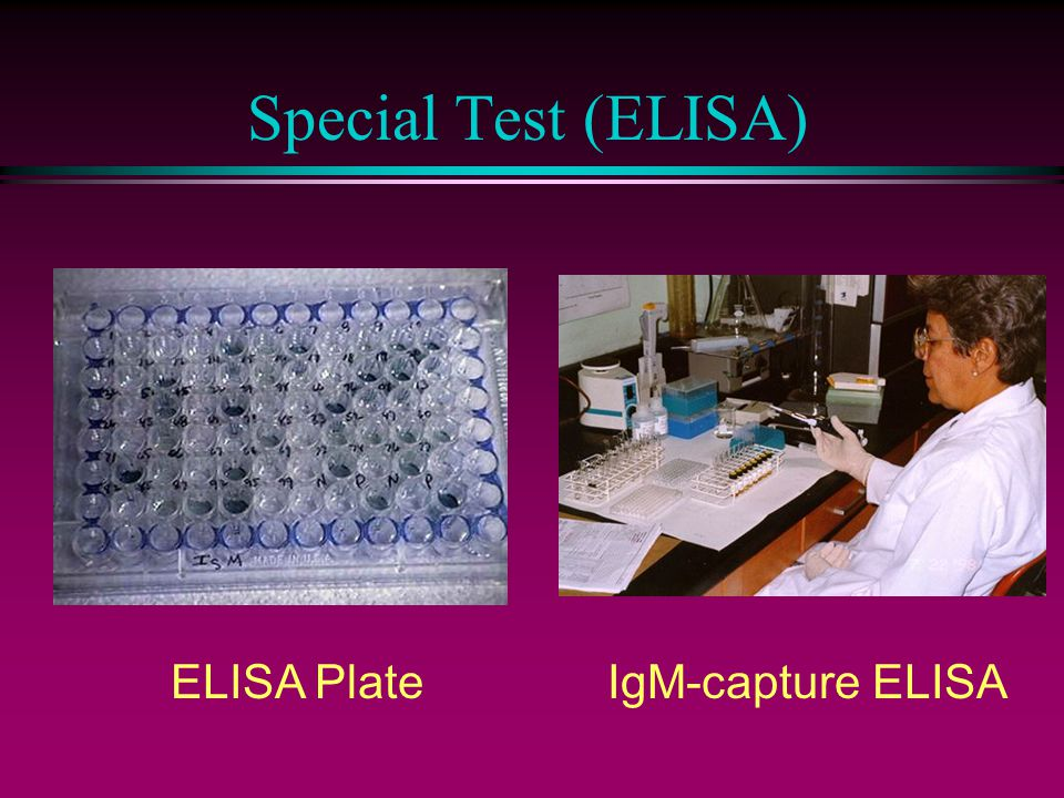 Special Test (ELISA) ELISA PlateIgM-capture ELISA