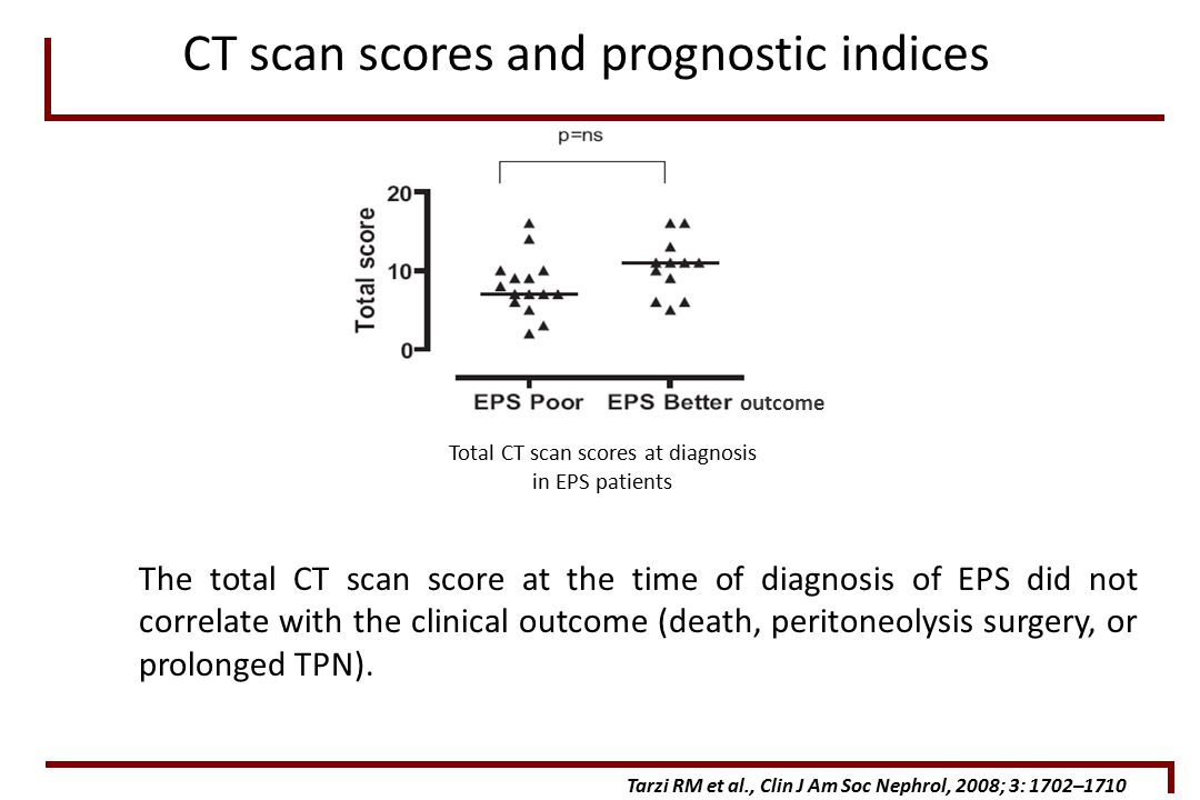 Total CT scan scores at diagnosis in EPS patients Tarzi RM et al., Clin J Am Soc Nephrol, 2008; 3: 1702–1710 CT scan scores and prognostic indices The total CT scan score at the time of diagnosis of EPS did not correlate with the clinical outcome (death, peritoneolysis surgery, or prolonged TPN).