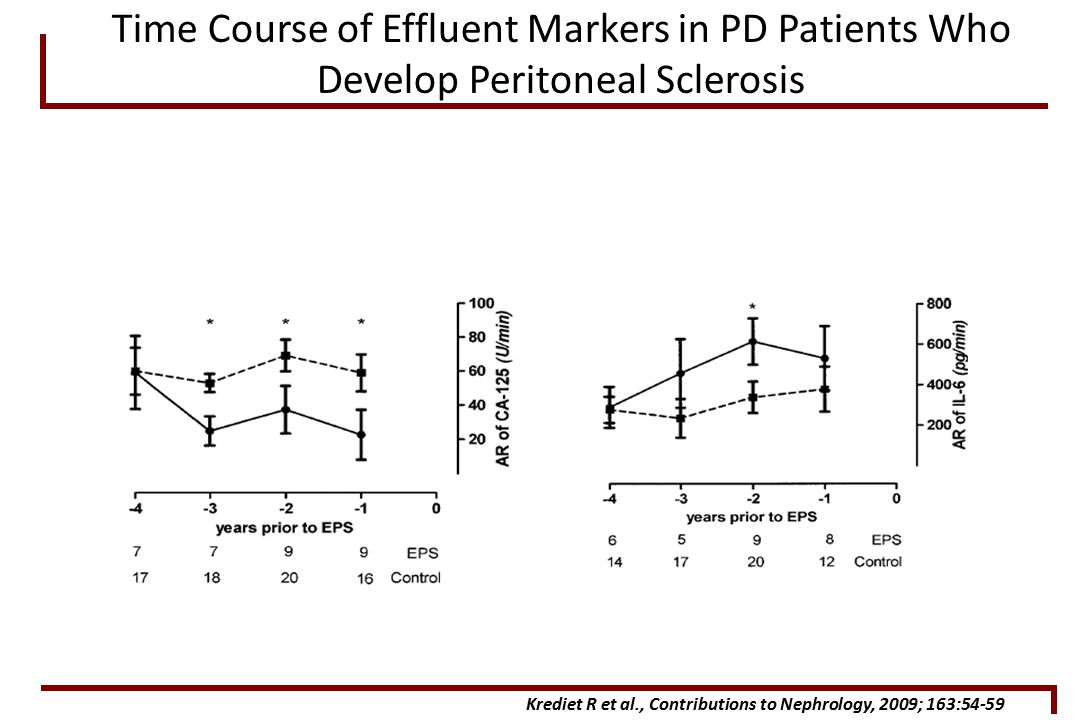 Time Course of Effluent Markers in PD Patients Who Develop Peritoneal Sclerosis Krediet R et al., Contributions to Nephrology, 2009; 163:54-59