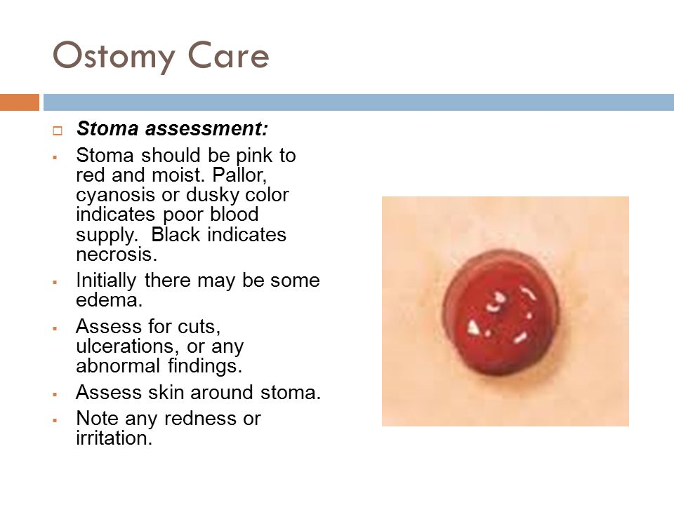Ostomy Care  Stoma assessment:  Stoma should be pink to red and moist.
