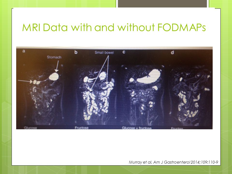 MRI Data with and without FODMAPs Murray et al. Am J Gastroenterol 2014;109:110-9