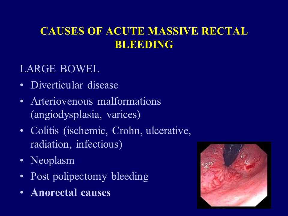 CAUSES OF ACUTE MASSIVE RECTAL BLEEDING LARGE BOWEL Diverticular disease Arteriovenous malformations (angiodysplasia, varices) Colitis (ischemic, Crohn, ulcerative, radiation, infectious) Neoplasm Post polipectomy bleeding Anorectal causes