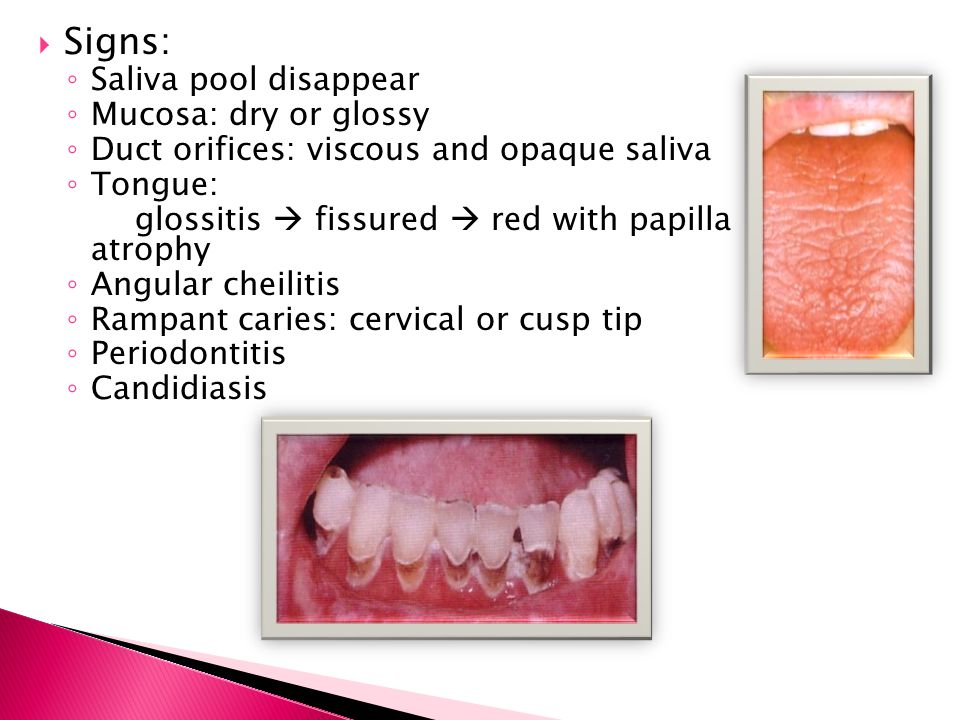  Signs: ◦ Saliva pool disappear ◦ Mucosa: dry or glossy ◦ Duct orifices: viscous and opaque saliva ◦ Tongue: glossitis  fissured  red with papilla