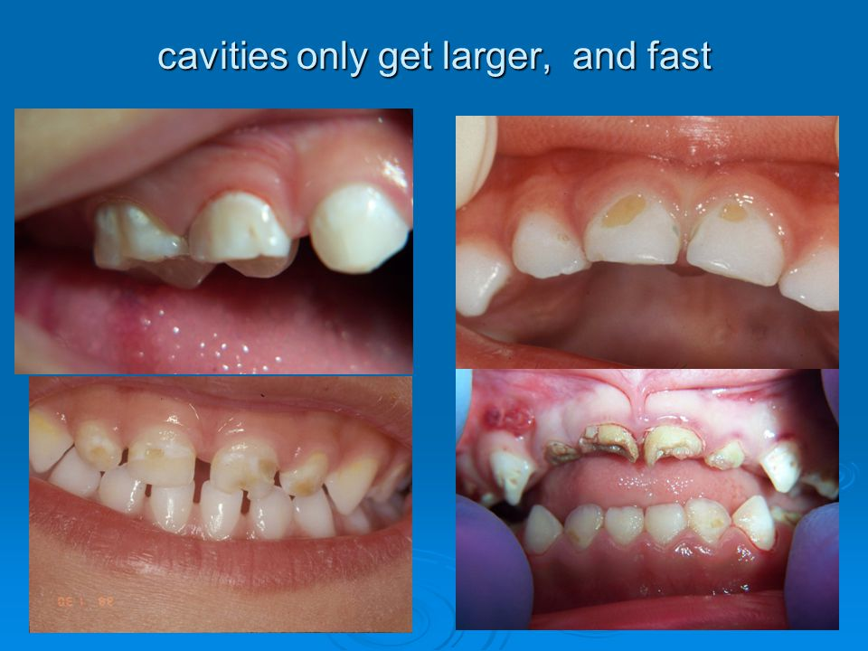 cavities only get larger, and fast