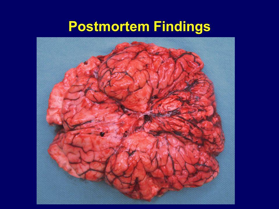 Postmortem Findings