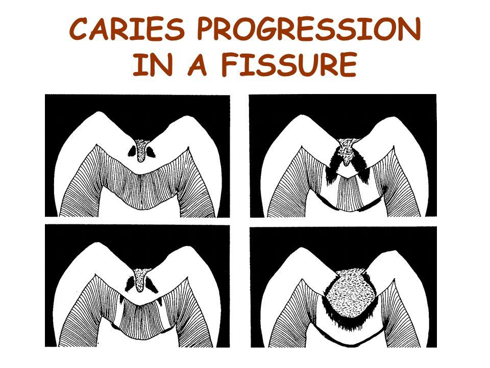 CARIES PROGRESSION IN A FISSURE