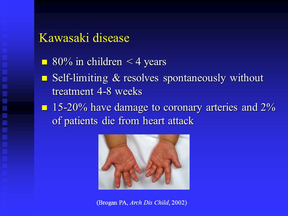 Kawasaki disease 80% in children < 4 years 80% in children < 4 years Self-limiting & resolves spontaneously without treatment 4-8 weeks Self-limiting & resolves spontaneously without treatment 4-8 weeks 15-20% have damage to coronary arteries and 2% of patients die from heart attack 15-20% have damage to coronary arteries and 2% of patients die from heart attack (Brogan PA, Arch Dis Child, 2002)
