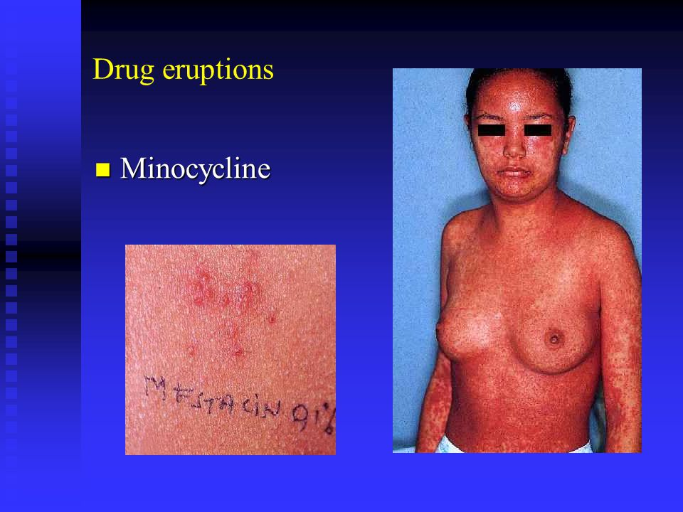 Drug eruptions Minocycline Minocycline