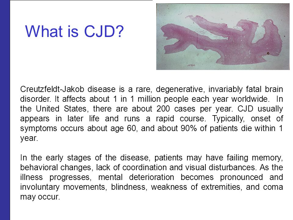 What is CJD? Creutzfeldt-Jakob disease is a rare, degenerative, invariably fatal brain disorder. It affects about 1 in 1 million people each year worl