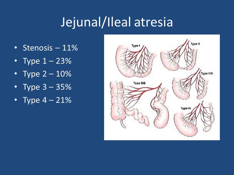Jejunal/Ileal atresia Stenosis – 11% Type 1 – 23% Type 2 – 10% Type 3 – 35% Type 4 – 21%
