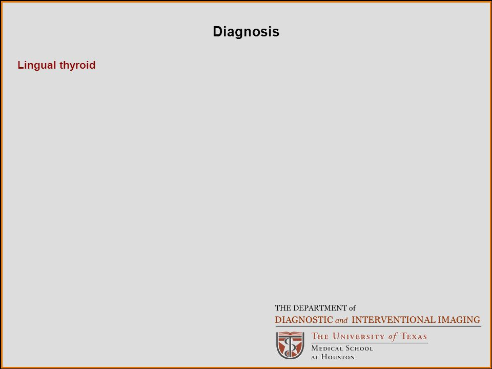 Lingual thyroid Diagnosis
