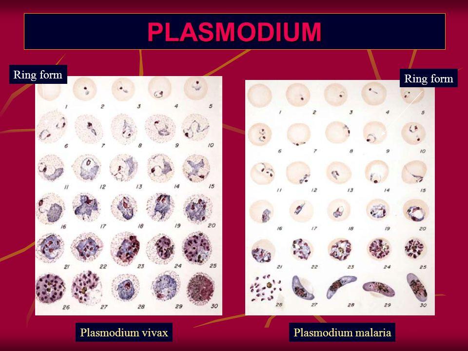 PLASMODIUM Plasmodium vivaxPlasmodium malaria Ring form