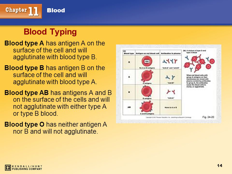 Blood 14 Blood Typing Blood type A has antigen A on the surface of the cell and will agglutinate with blood type B.