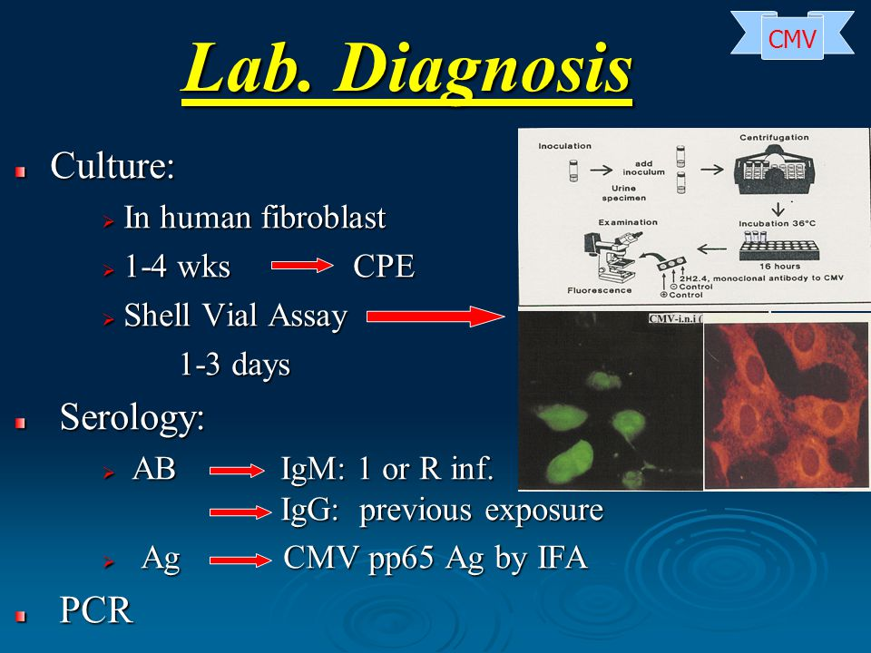 Lab. Diagnosis Culture: Culture:  In human fibroblast  1-4 wks CPE  Shell Vial Assay 1-3 days 1-3 days Serology: Serology:  AB IgM: 1 or R inf. Ig