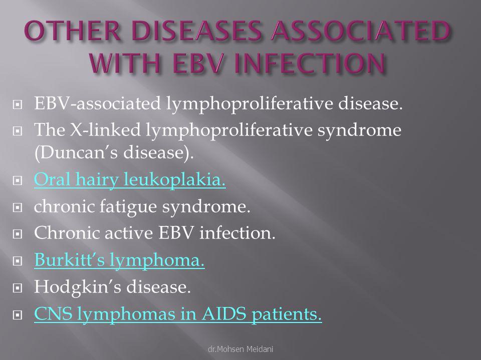  EBV-associated lymphoproliferative disease.