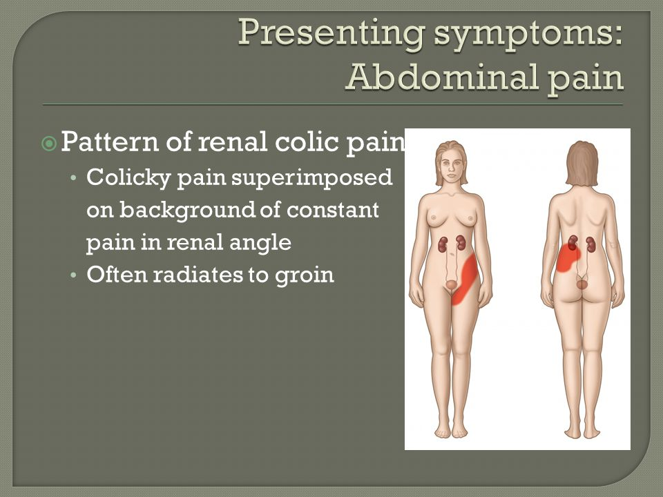  Pattern of renal colic pain Colicky pain superimposed on background of constant pain in renal angle Often radiates to groin