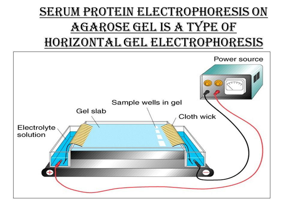Serum protein electrophoresis on agarose gel is a type of horizontal gel electrophoresis