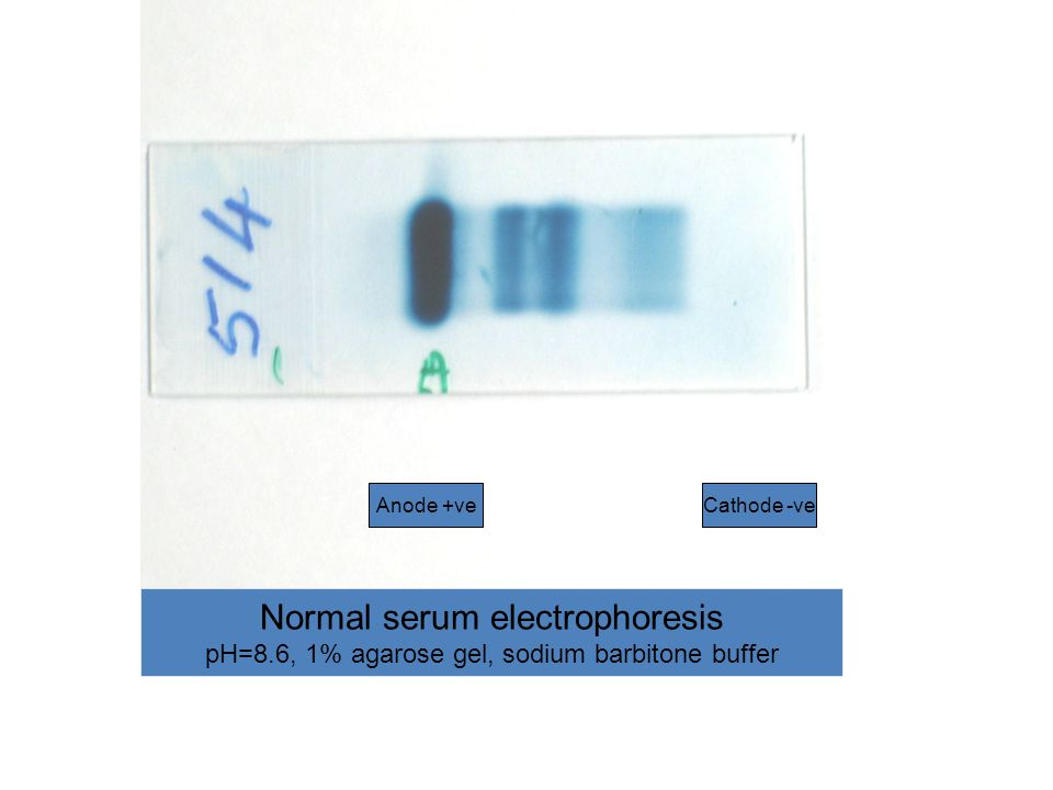 Normal serum electrophoresis pH=8.6, 1% agarose gel, sodium barbitone buffer Anode +veCathode -ve