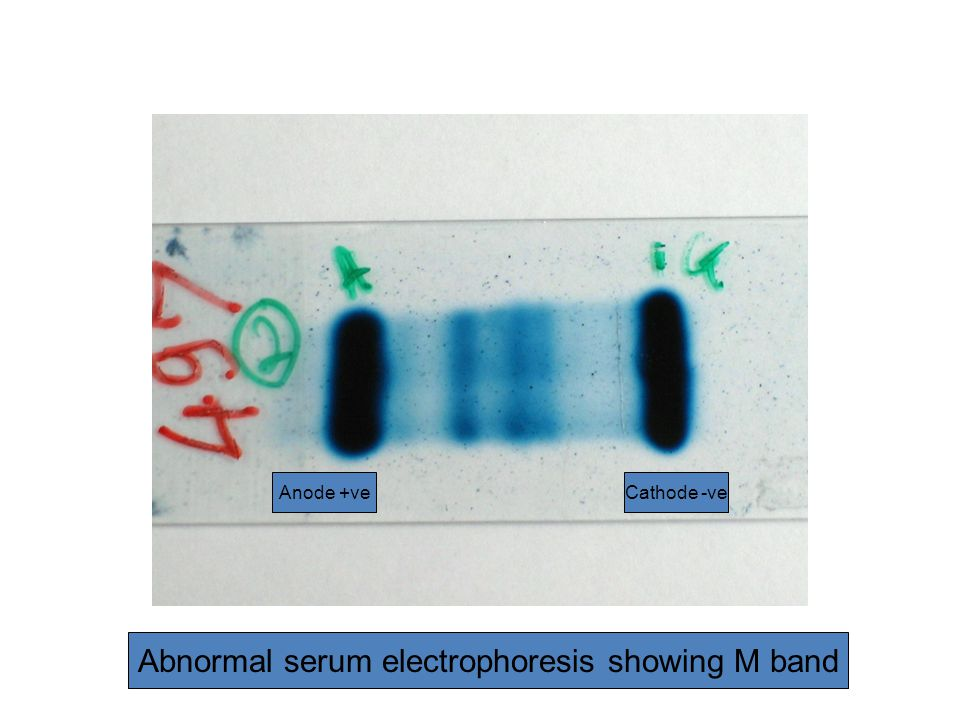 Abnormal serum electrophoresis showing M band Anode +veCathode -ve