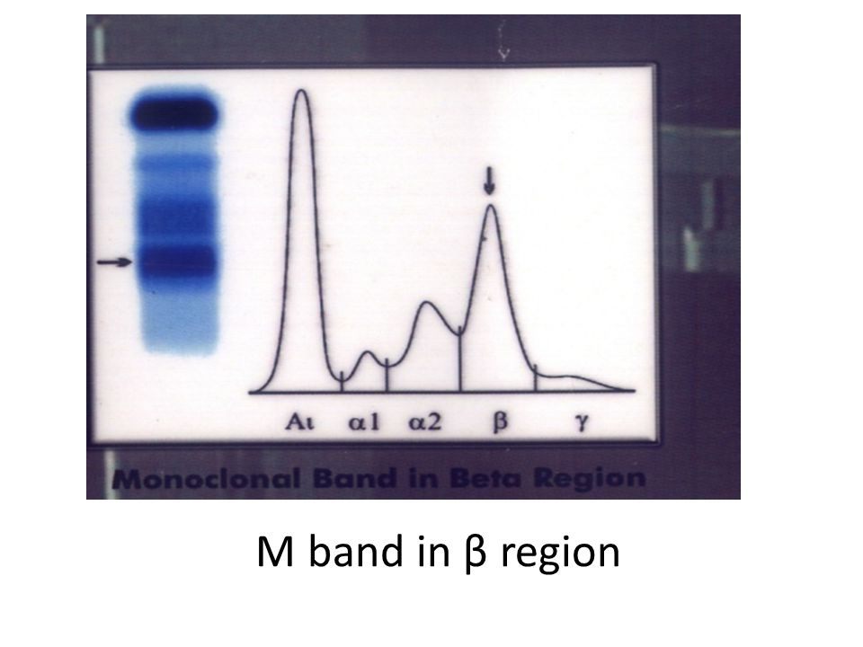 M band in β region