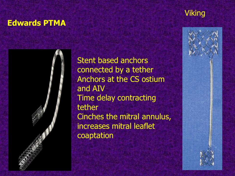 Edwards PTMA Viking Stent based anchors connected by a tether Anchors at the CS ostium and AIV Time delay contracting tether Cinches the mitral annulus, increases mitral leaflet coaptation