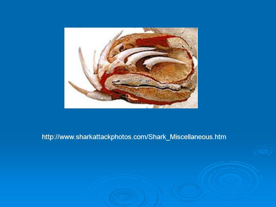http://www.sharkattackphotos.com/Shark_Miscellaneous.htm
