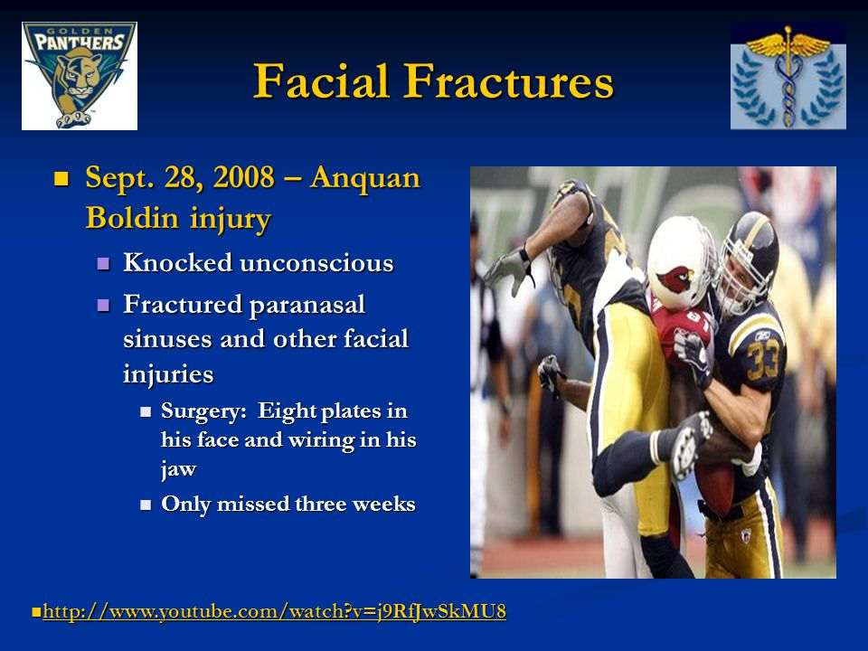 Facial Fractures Sept. 28, 2008 – Anquan Boldin injury Sept.