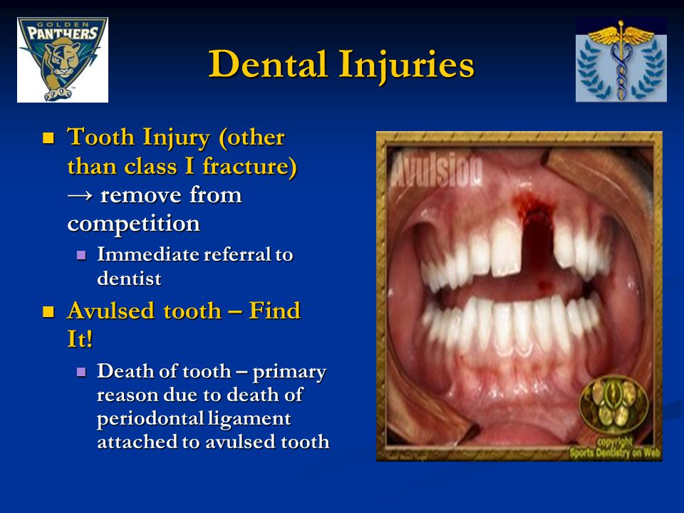 Dental Injuries Tooth Injury (other than class I fracture) → remove from competition Tooth Injury (other than class I fracture) → remove from competition Immediate referral to dentist Immediate referral to dentist Avulsed tooth – Find It.