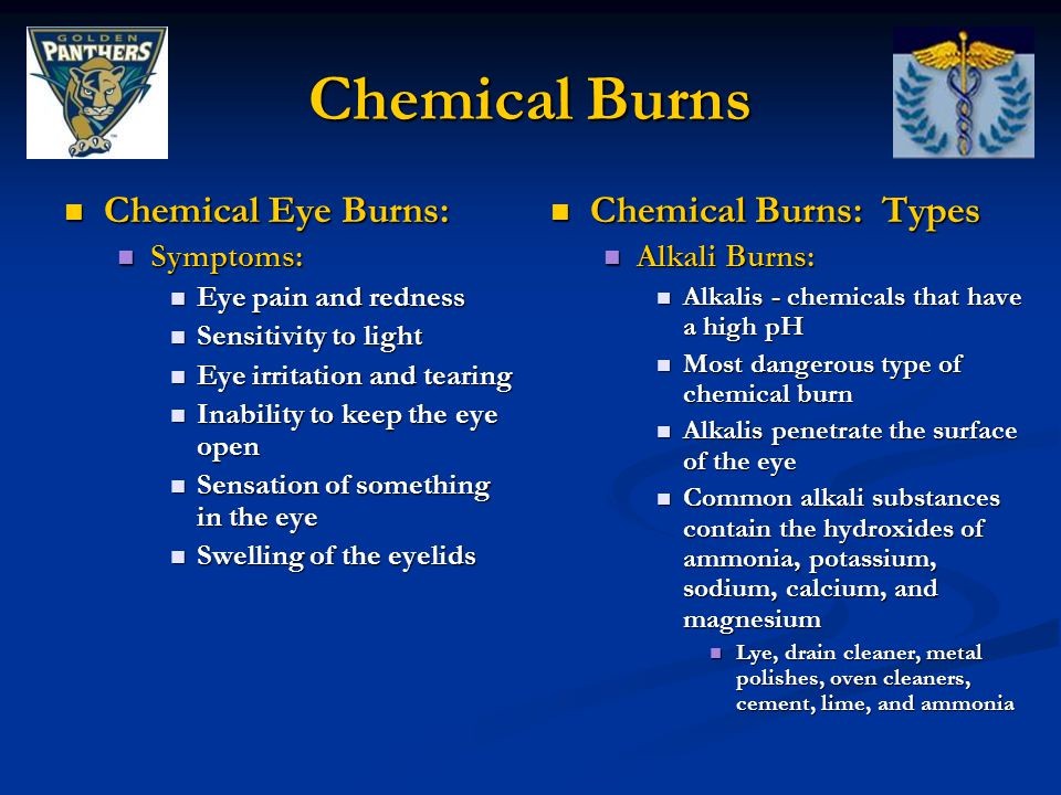Chemical Burns Chemical Eye Burns: Chemical Eye Burns: Symptoms: Symptoms: Eye pain and redness Eye pain and redness Sensitivity to light Sensitivity to light Eye irritation and tearing Eye irritation and tearing Inability to keep the eye open Inability to keep the eye open Sensation of something in the eye Sensation of something in the eye Swelling of the eyelids Swelling of the eyelids Chemical Burns: Types Alkali Burns: Alkalis - chemicals that have a high pH Most dangerous type of chemical burn Alkalis penetrate the surface of the eye Common alkali substances contain the hydroxides of ammonia, potassium, sodium, calcium, and magnesium Lye, drain cleaner, metal polishes, oven cleaners, cement, lime, and ammonia