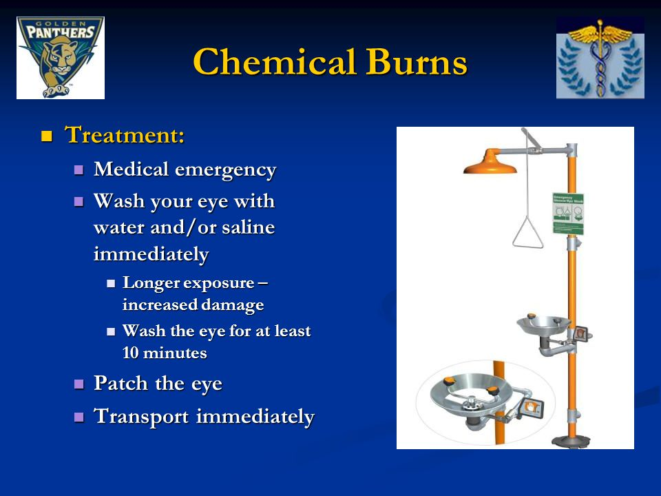 Chemical Burns Treatment: Treatment: Medical emergency Medical emergency Wash your eye with water and/or saline immediately Wash your eye with water and/or saline immediately Longer exposure – increased damage Longer exposure – increased damage Wash the eye for at least 10 minutes Wash the eye for at least 10 minutes Patch the eye Patch the eye Transport immediately Transport immediately
