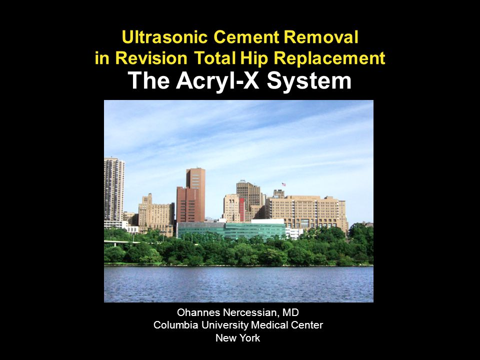 Ultrasonic Cement Removal in Revision Total Hip Replacement The Acryl-X System Ohannes Nercessian, MD Columbia University Medical Center New York
