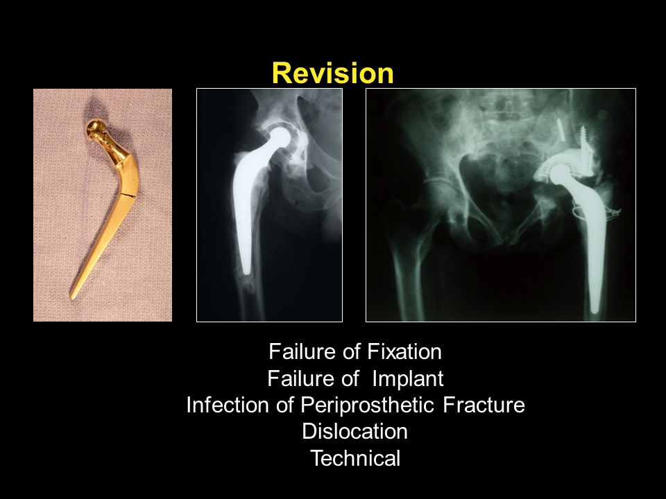 Revision Failure of Fixation Failure of Implant Infection of Periprosthetic Fracture Dislocation Technical