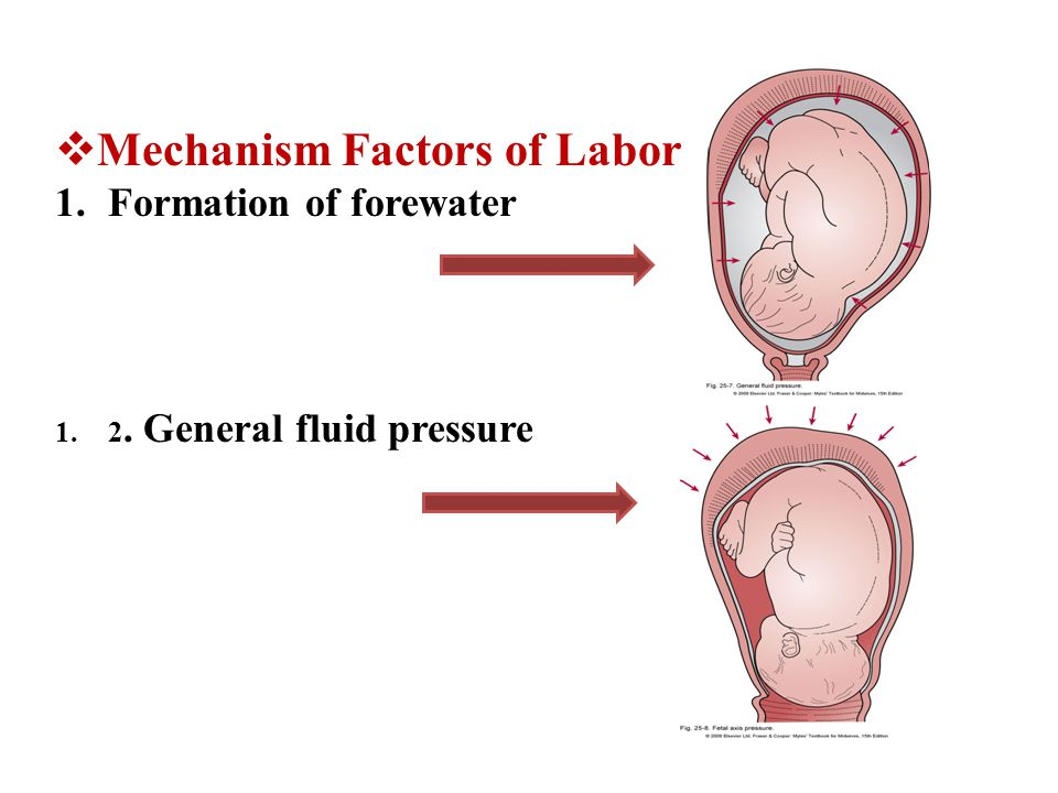  Mechanism Factors of Labor 1.Formation of forewater 1.2. General fluid pressure