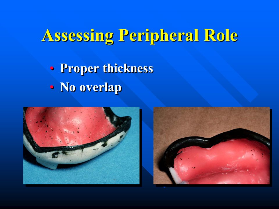 Assessing Peripheral Role Proper thickness No overlap Proper thickness No overlap