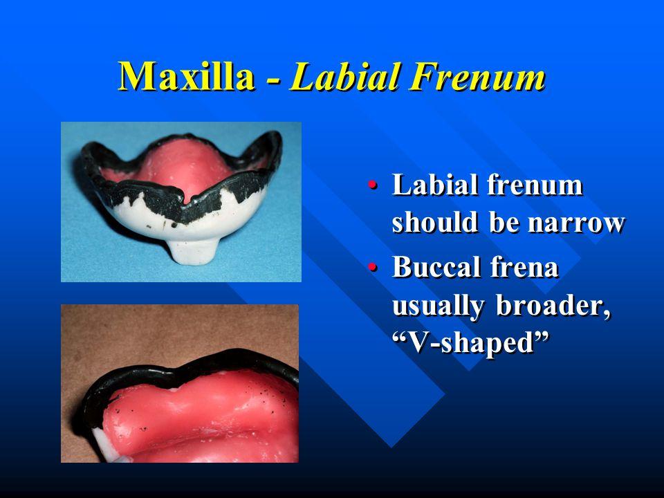 "Maxilla - Labial Frenum Labial frenum should be narrow Buccal frena usually broader, ""V-shaped"" Labial frenum should be narrow Buccal frena usually br"